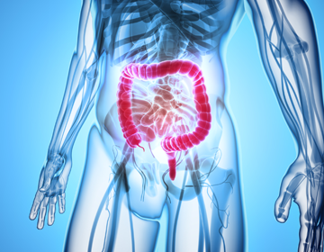 Studio naturopata Roma - Test per disbiosi intestinale